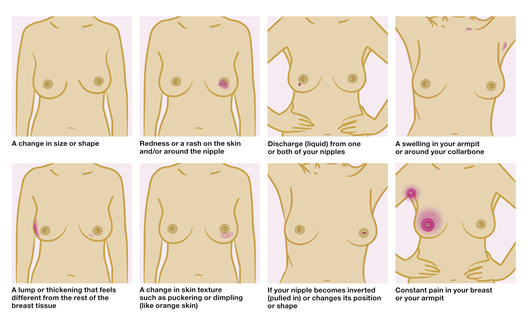 breast-cancer-care-check