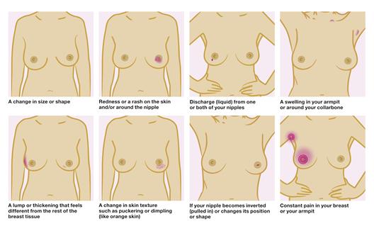 breast-cancer-care-check